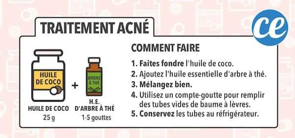 Voici la recette maison super facile à l'huile de coco pour faire un traitement contre l'acné à l'huile de coco.