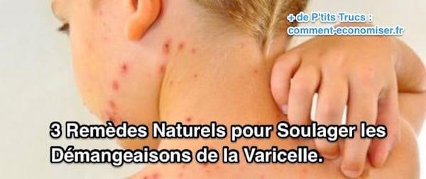 remèdes contre la varicelle sans médicaments
