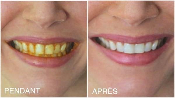 Utilisez du curcuma pour naturellement blanchir les dents.
