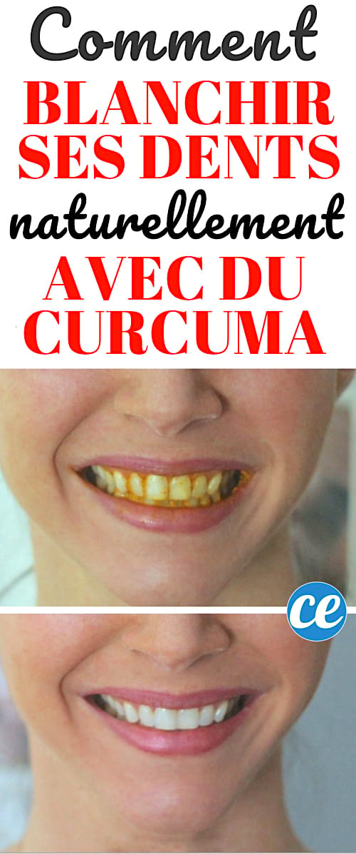 se brosser les dents naturellement
