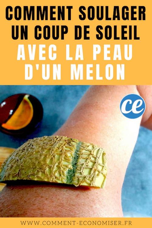 Comment soulager un coup de soleil avec la peau d 39 un melon - Comment calmer les coups de soleil ...