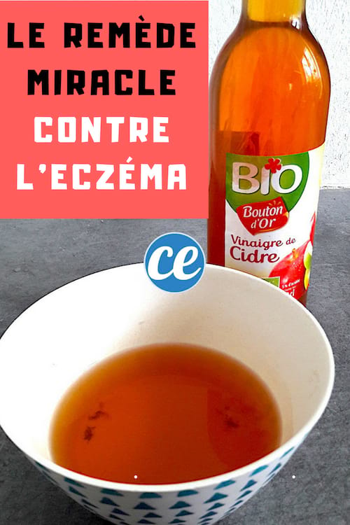 du vinaigre de cidre pour soulager l'eczéma naturellement
