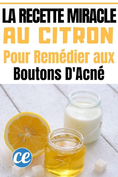Astuce naturelle au citron contre les boutons d'acné