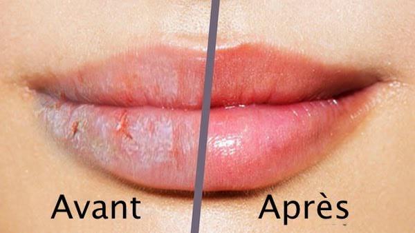soigner lèvres gercées avec huile de ricin