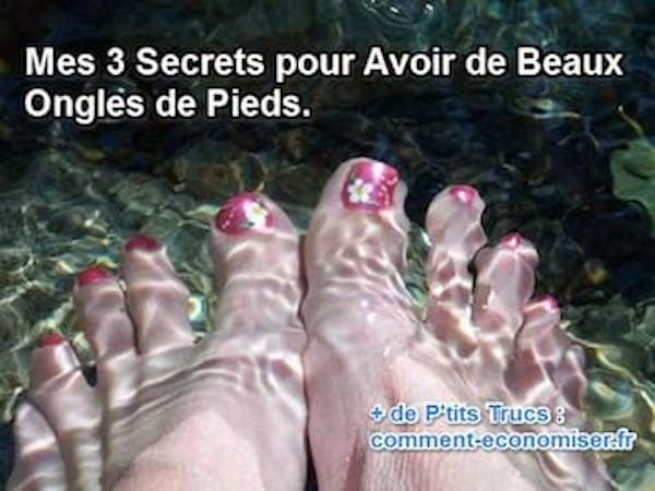 astuces pour avoir de beaux ongles de pieds