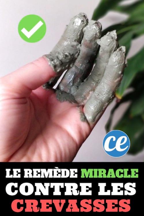 Comment soigner les crevasses des mains avec un remède naturel et efficace