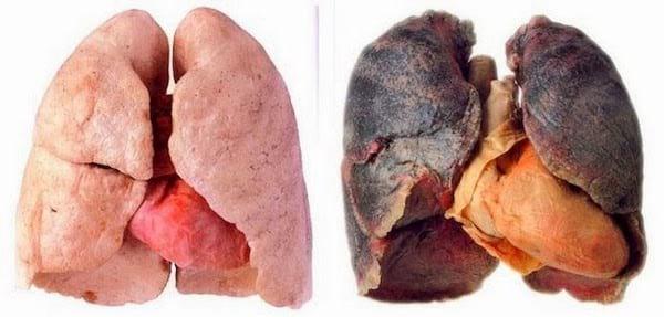 Arrêter de fumer : une des 20 choses à faire à 30 ans pour avoir une meilleure vie à 50 ans.