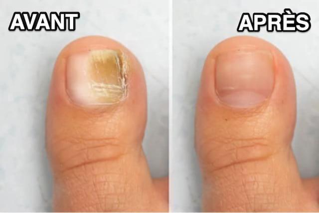 Le remède efficace contre les mycoses des ongles