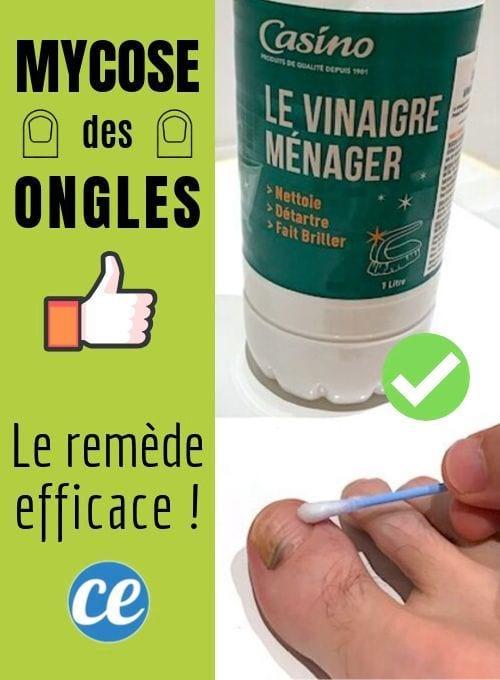 Mycose Des Ongles Le Remede Miracle Pour En Venir A Bout Facilement