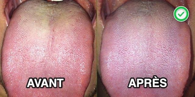 Traitement efficace et naturel contre le muguet buccal chez les adultes