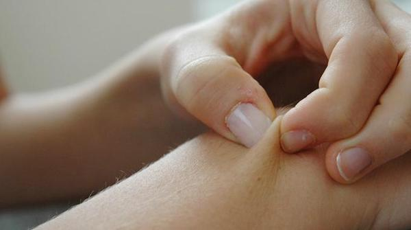 Una persona si pizzica la pelle