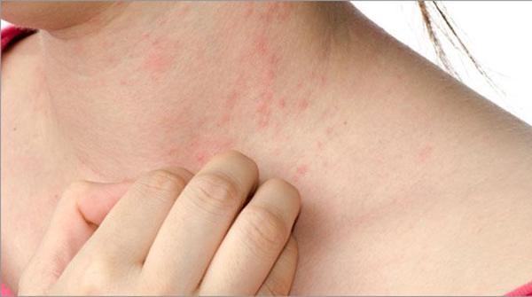 Eczema brufoli nel collo