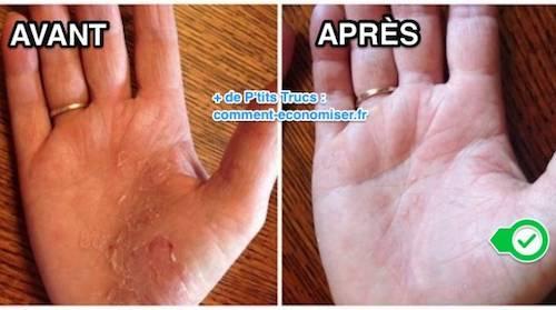 Una mano con psoriasi e una mano senza psoriasi dopo il trattamento