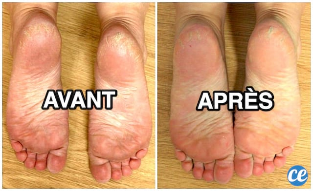 Des pieds secs avant et tout doux après grâce au bicarbonate