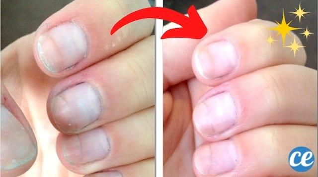 Des ongles jaunis avant et tout blanc après grâce au bicarbonate