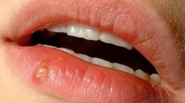 Un bouton de fièvre sur la bouche