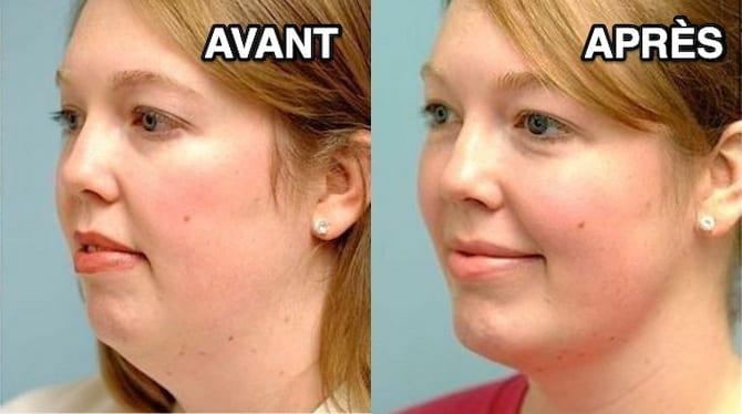 Une femme qui a réussit à perdre son double menton sans faire de chirurgie