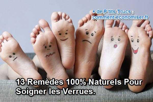 13 Remèdes 100% Naturels pour Soigner les Verrues.