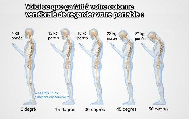 Schéma qui montre la position de la colonne vertébrale est mauvaise quand on regarde un smartphone