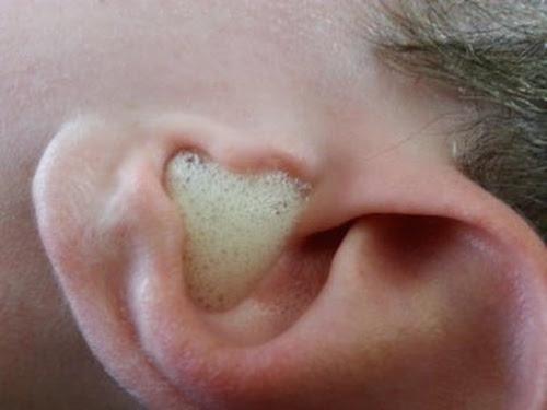L'eau oxygénée nettoie les oreilles