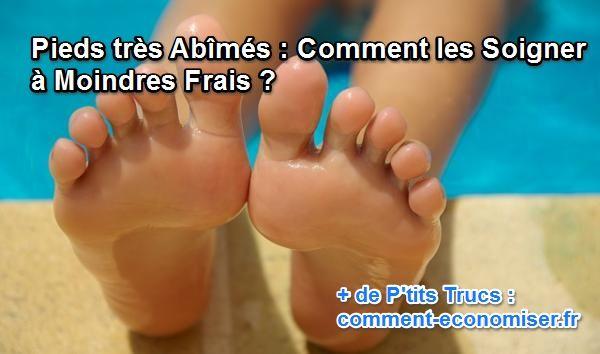 soins pieds secs