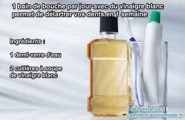 détartrage blanchit les dents