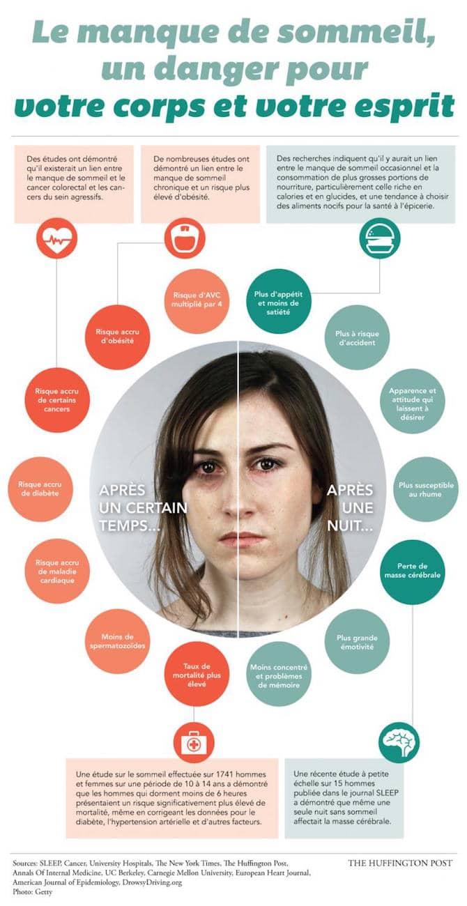 Les effets du manque du sommeil sur la santé