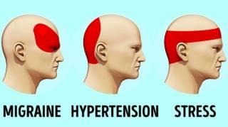 remède contre mal de tête sans médicaments