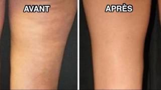 remedes-naturelles-pour-lutter-contre-la-cellulite