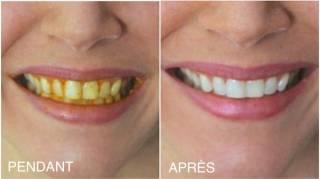 Comment Blanchir Ses Dents Avec du Curcuma (Rapide Et Efficace)