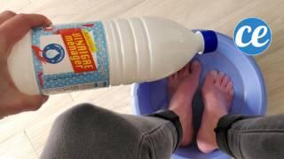 remède de grand efficace contre les mycoses des pieds