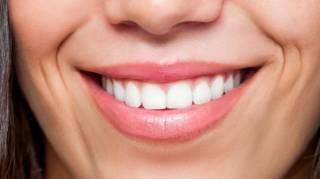 astuce naturelle pour avoir les dents blanches