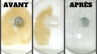 7 Astuces Simples Et Efficaces Contre Le Tartre Dans Les WC