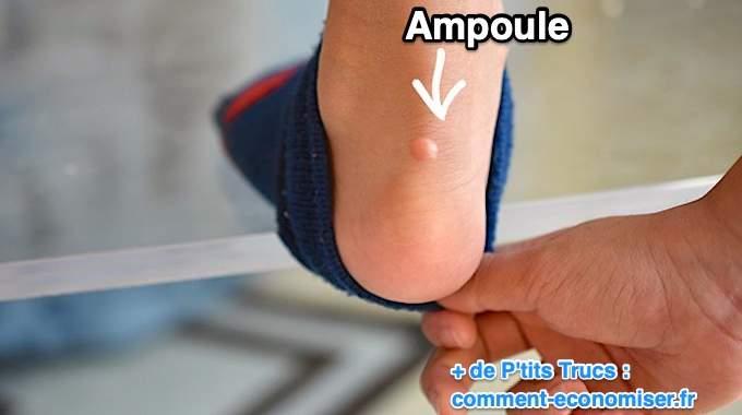 Ampoules Aux Pieds : L'Astuce Surprenante Pour Ne Plus JAMAIS En Avoir !