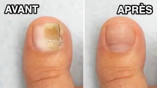Mycose Des Ongles : Le Remède Miracle Pour En Venir à Bout Facilement