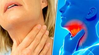remède contre le mal de gorge
