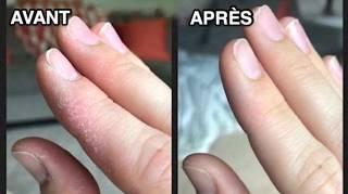 remède efficace contre les mains sèches