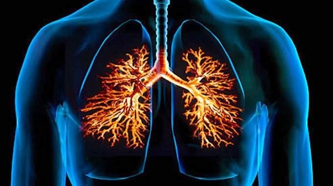 Bronchite Aiguë : Le Remède Radical Aux Huiles Essentielles.
