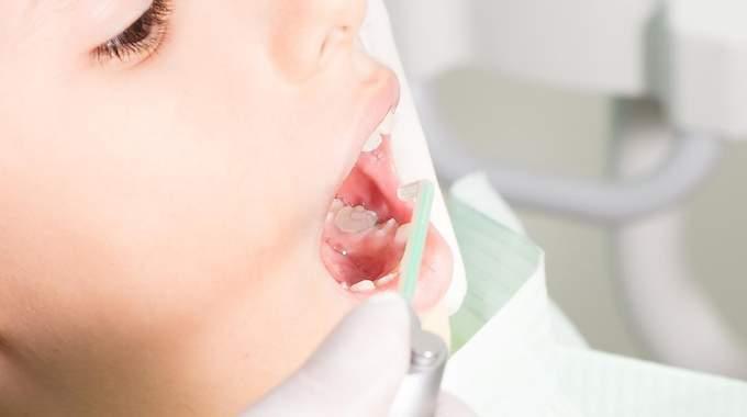 Soigner les Dents des 6-18 ans Gratuitement !