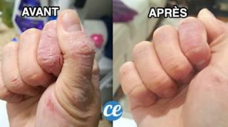 Crevasses sur les Mains : Le Remède de Grand-Mère Aux Huiles Essentielles