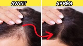 10 Remèdes Totalement Naturels Pour Faire Repousser Vos Cheveux