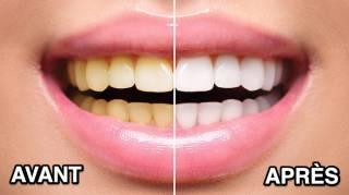 Comment Blanchir Ses Dents Naturellement En Seulement 1 Jour