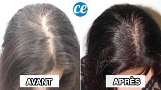 11 Trucs Faciles Que Vous Pouvez Faire Pour Stopper la Chute des Cheveux