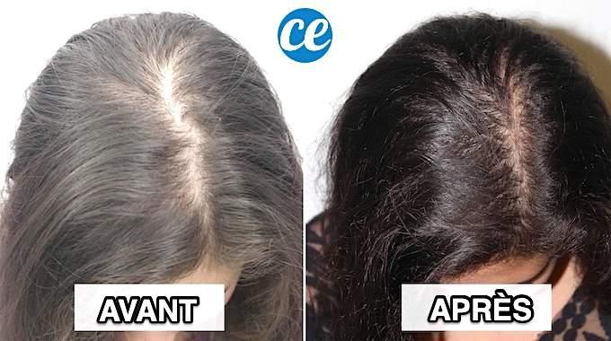 Comment STOPPER la Chute des Cheveux ? 11 Remèdes Naturels.