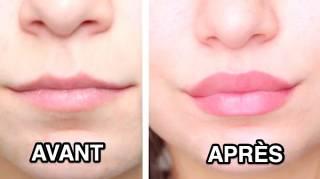 Comment Avoir des Lèvres Pulpeuses Naturellement  12 Astuces Qui Marchent
