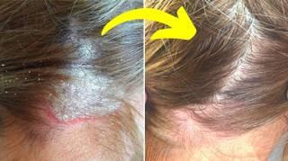 17 Remèdes Contre le Psoriasis du Cuir Chevelu (Révélés Par un Dermato)