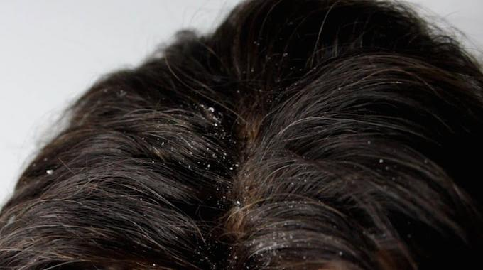 shampoing bio pellicules