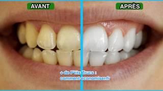 Astuce naturelle pour avoir des dents blanches