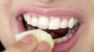 astuce pour blanchir dents rapidement