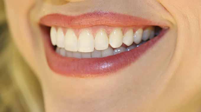 les 3 meilleures astuces au sel pour avoir les dents blanches. Black Bedroom Furniture Sets. Home Design Ideas